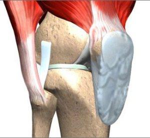 cartilage1
