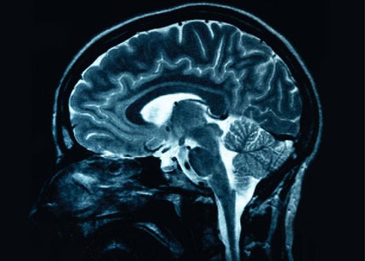 brain-scan_530