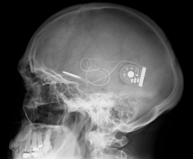 biotech_retinal-implant