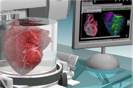 bioprinted heart