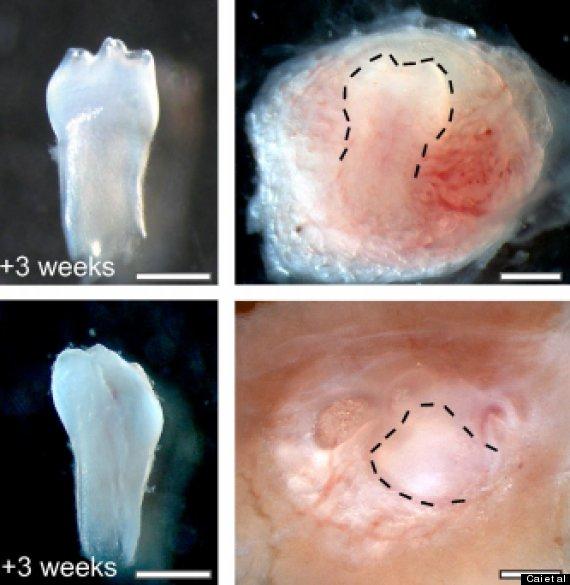URINE-STEM-CELLS-TEETH-570
