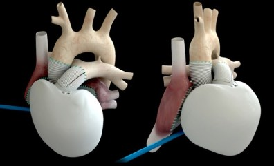 carmat_artificialheart