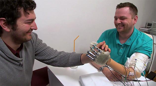 bionic-hand