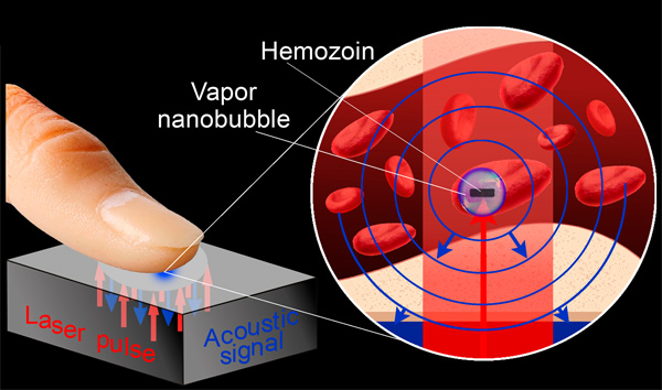 malaria-blood-free-detector
