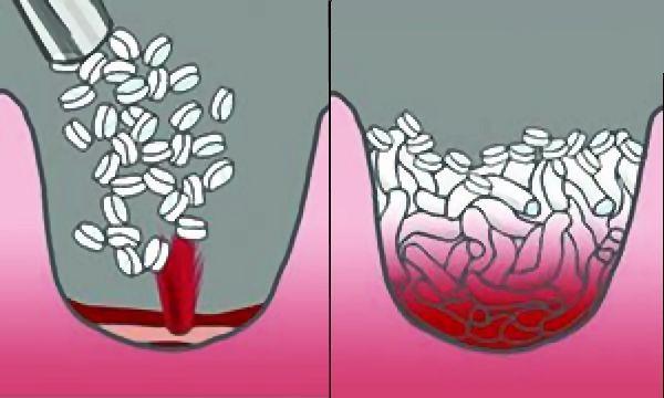 xstat-combat-injury-treatment-injectable-sponges-5