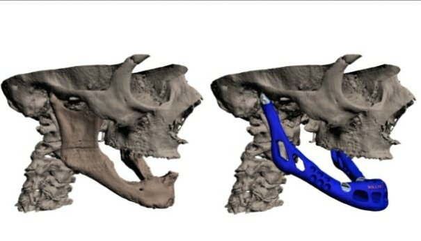 3d-printed-jaw