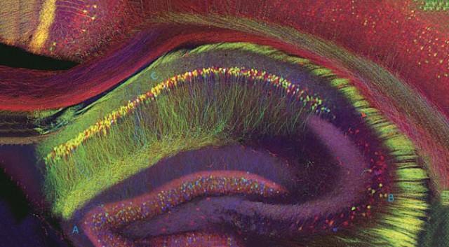 human-hippocampus-640x353