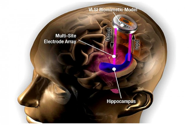 brain-implant-hippocampus-usc-640x424