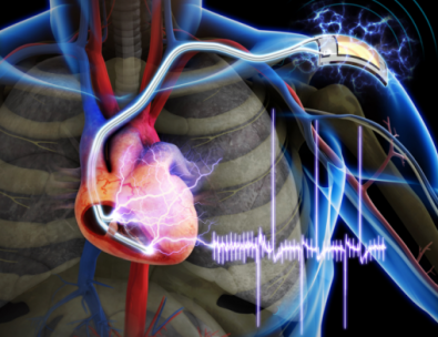The Future of Medicine: Muscle-Powered Pacemaker