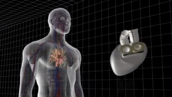 carmat-artificial-heart